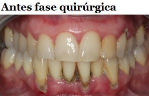 antesfasequirurgica